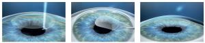 SMILE Eye Surgery Visual